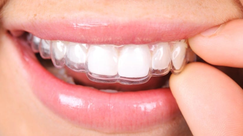Leave it to the professionals to tell you about the benefits of invisible braces