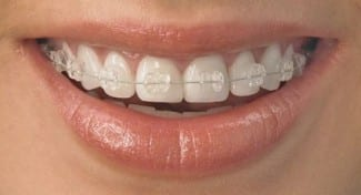 Our fastbraces in Liverpool for straight teeth in no time