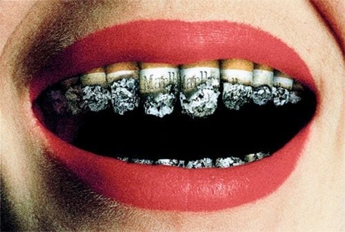 Smoking cessation in Liverpool will help your teeth