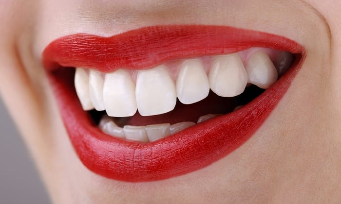 The Perfect Present is Definitely Teeth Whitening for Christmas