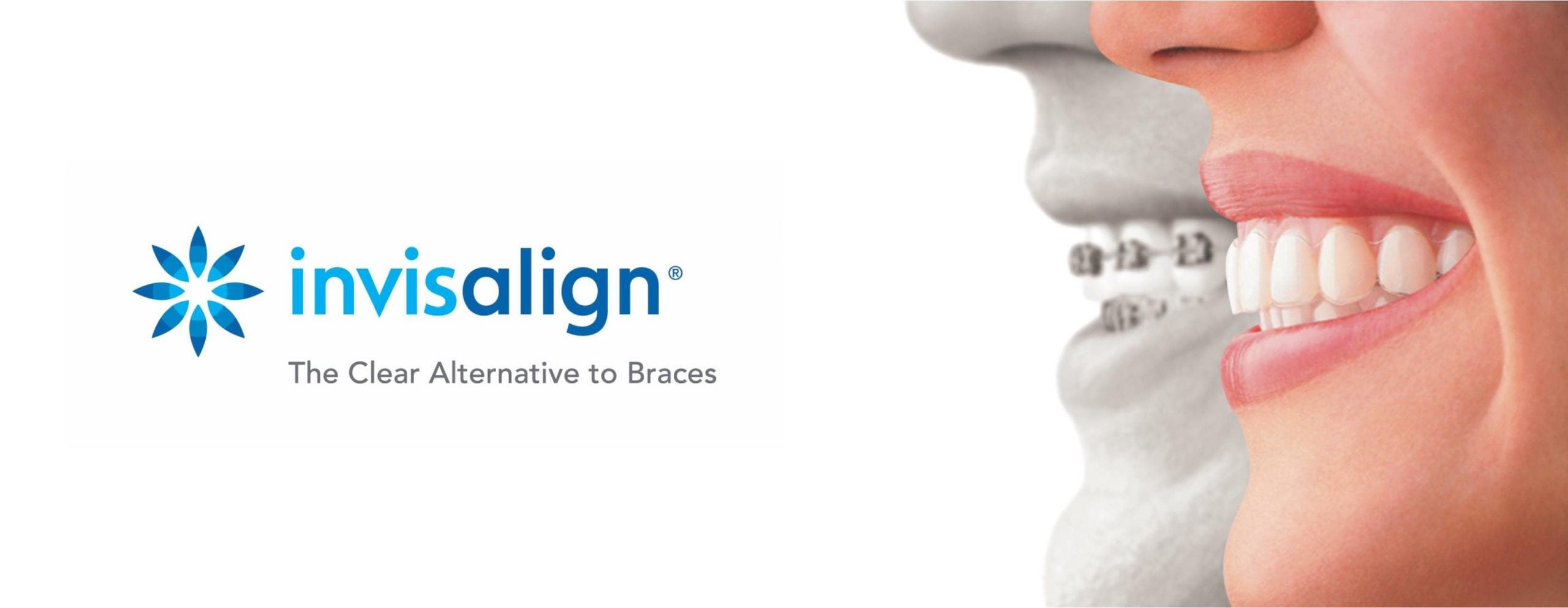 Looking at invisalign braces cost and options