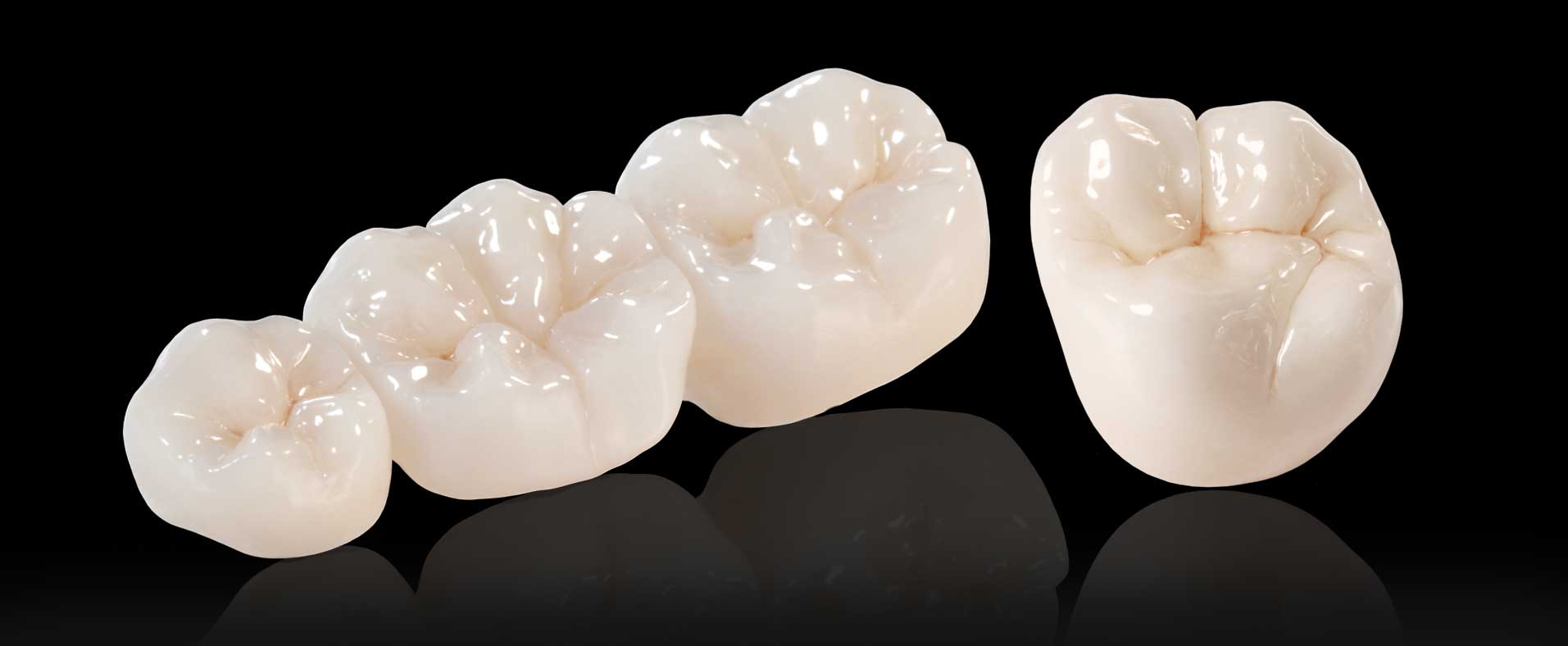 Our dental crowns and bridges