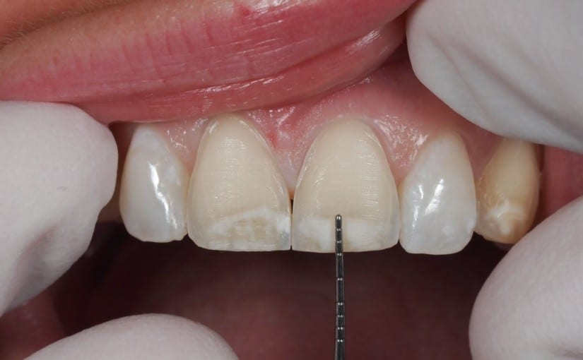 Porcelain Veneers Cost and Options