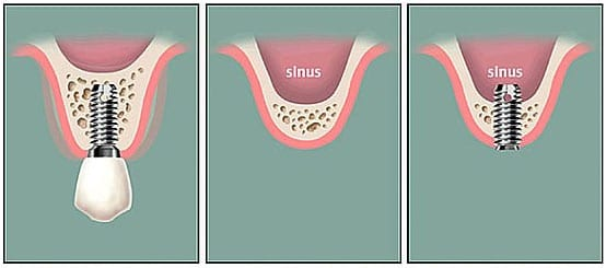 Sinus lift procedure