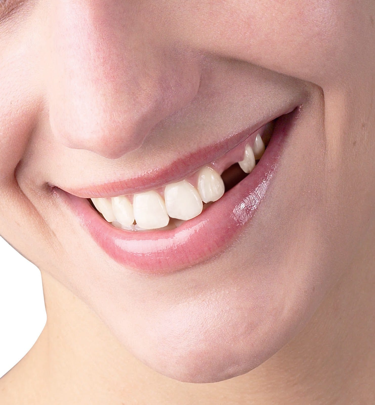 Treatment for missing teeth using PRGF in Liverpool