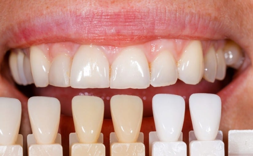 Getting porcelain veneers in Liverpool
