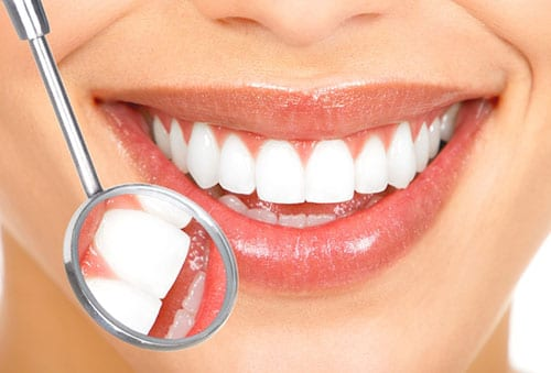Switching to white, composite fillings