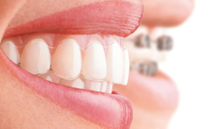 Get a new smile with invisible or fastbraces in Liverpool