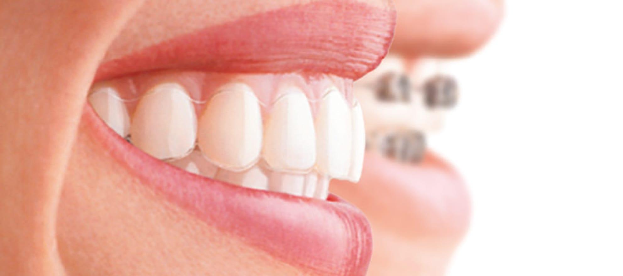 #1 Orthodontics Liverpool.
