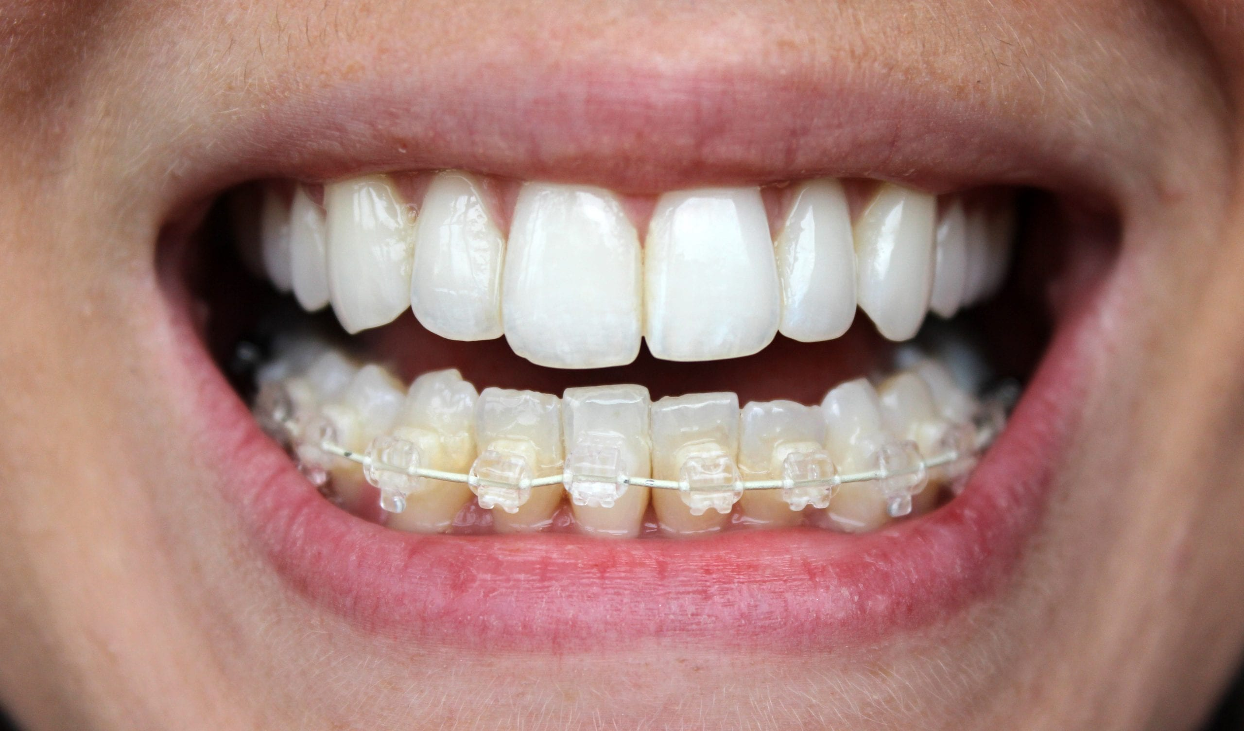 Affordable, professional 6 month braces Liverpool.