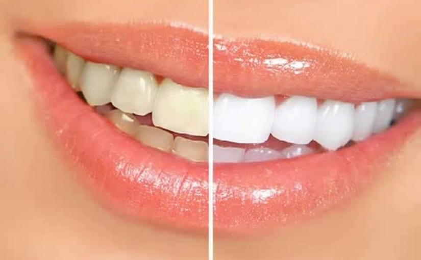 Cosmetic Dentistry at Fiveways Dental