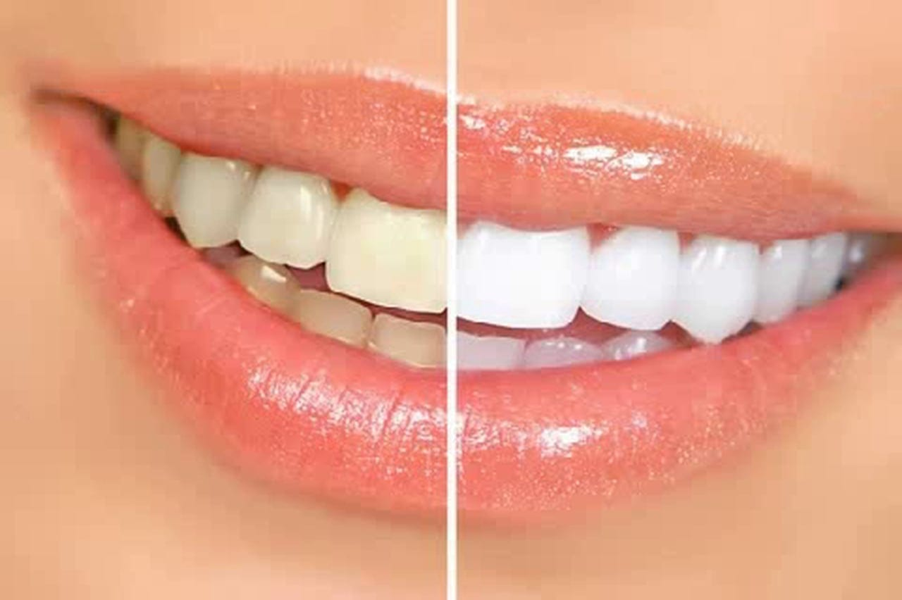 Cosmetic dentist work