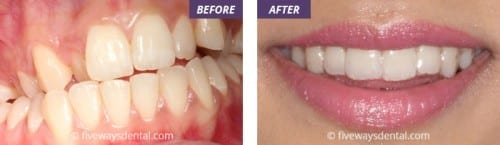 Braces before and after