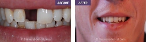 emergency dentist treatment