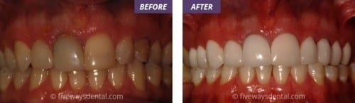 best porcelain veneers liverpool