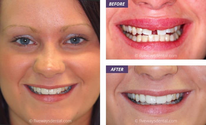 porcelain veneers pictures