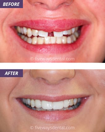 Veneers and Crowns 1
