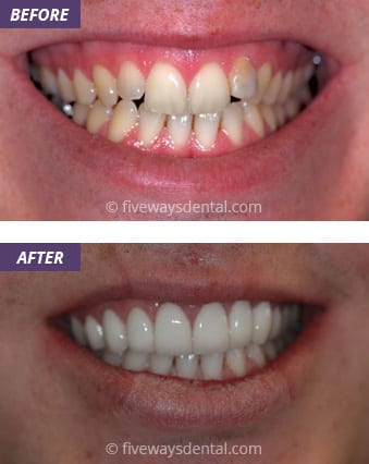 Veneers and Crowns 2