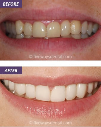 Veneers and Crowns 3