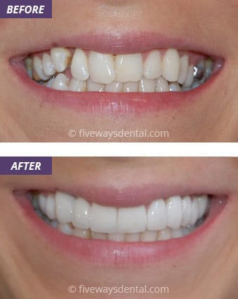 Veneers and Crowns 4