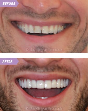 Veneers and Crowns 5