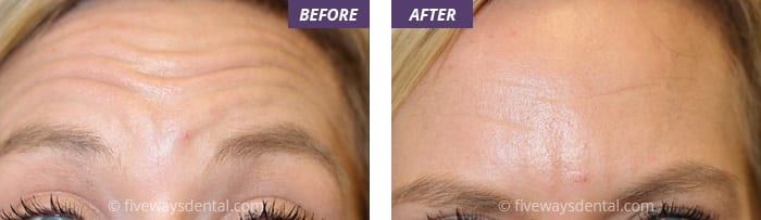 Botox and Dermal Fillers