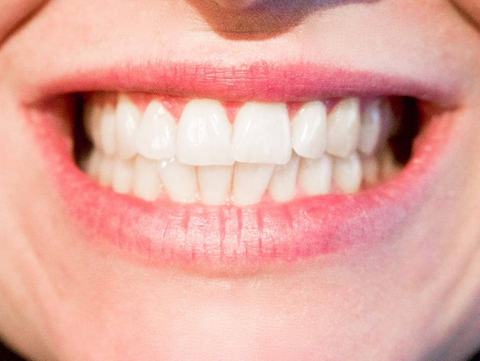 composite fillings in liverpool