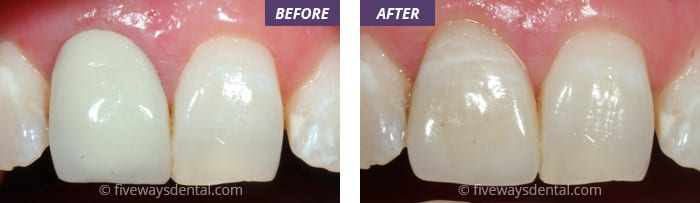 Cerec (same day) Crowns and Veneer