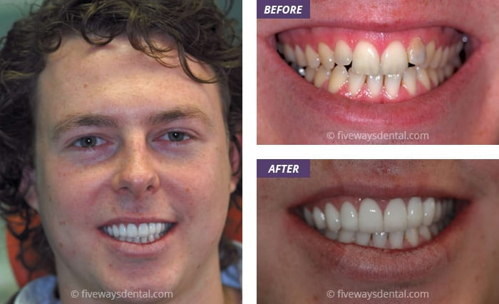 porcelain veneers and bleaching