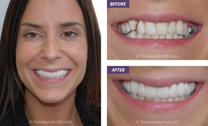 veneers and crowns