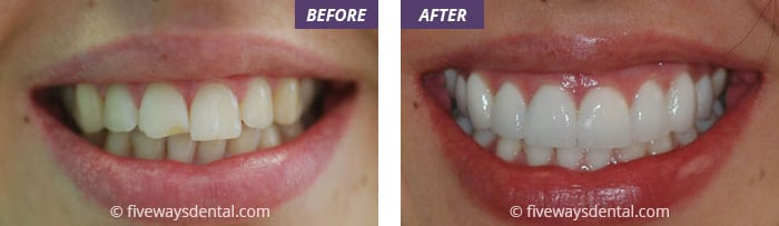 veneers and bleaching