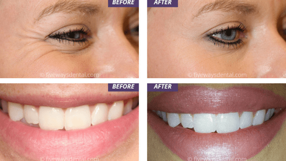 Botox And Dermal Fillers At Fiveways Dental Practice