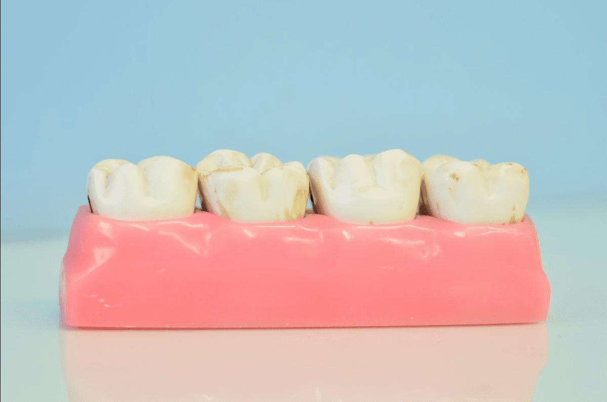denture dentist liverpool