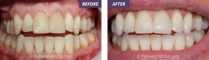 CEREC tooth restoration