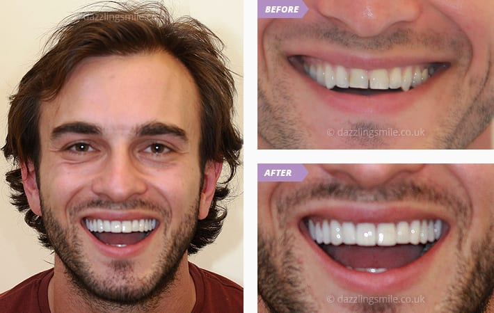 The Trend for Veneers Continues